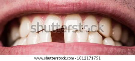 Yellow bad teeth. Smile men with a lost front tooth, toothache. Man without one front tooth. No teeth. Yellow teeth. Bad dental health, no teeth, no fluoride, tooth erosion.