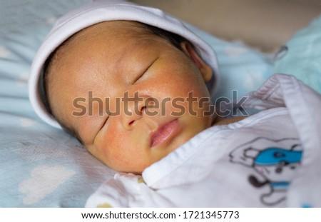 yellow skin colored neonatal jaundice happen in new born baby infant Stock photo ©