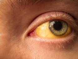 yellow staining of the sclera of the eye in diseases of the liver, cirrhosis, hepatitis, bilirubin