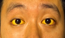 Yellowish discoloration of skin and sclera or deep jaundice in face of Southeast Asian young man. It can occur in hepatitis, cholangitis, cholangiohepatitis, leptospirosis, liver failure and hemolysis