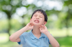 Young asian boy scratching his allergy face outdoor