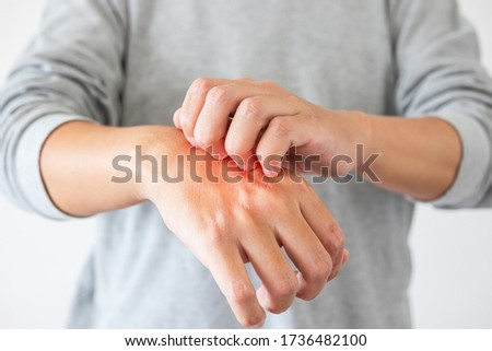 Young asian man itching and scratching on hand from itchy dry skin eczema dermatitis Stock photo ©
