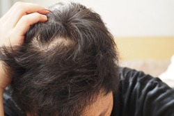 Young Asian man using his hand slicking his hair back after facing hair loss problem. Take medicine like zinc and biotin to make his hair grow faster and thicker. Men health and medical concept