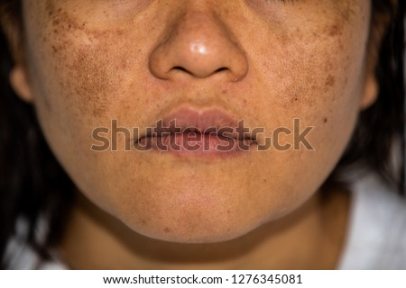 Young Asian women having a skin problem with melasma and hyperpigmentation on her face.both side on her cheeks.