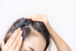 Young asian women worried about hair loss problems, Hiar care concept