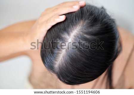 Young asian wonenworry about problem hair loss,thin hair.