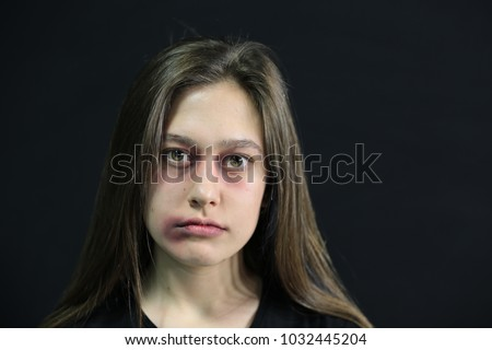 Young beaten up woman looking at camera. Violence to women. 8 March Women's Day