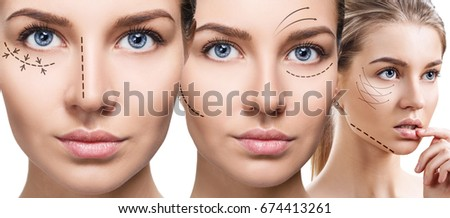Young beautiful woman with black arrows on her face. Face lifting concept.