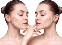 Young beautiful woman with lifting lines before and after chin correction. Over white background.