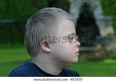 Young Boy with Down Syndrome Profile