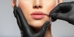 Young caucasian woman getting botox cosmetic injection in the lips. Beautiful woman gets botox injection in her face. Adult girl gets cosmetic injection of botox in a clinic. Beauty treatments
