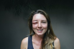 Young caucasian woman with a swollen eye from a wasp's sting. Allergy reaction on wasp bite.