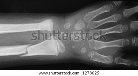 Young child's forearm fractured. The wrist bones are still cartilagenous.