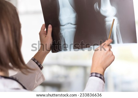 Young female doctor looking at the x-ray picture of knee injury in a hospital
