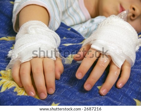 Young Girl Illness, Bandage, Foil, Ointment On The Hands, Burns And Scalds