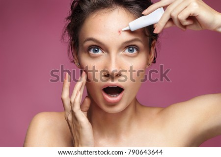 Young girl in shock of her acne. Photo of ugly girl with problem skin appling treatment cream on pink background. Skin care concept