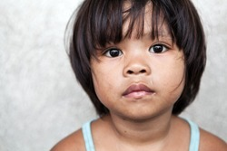 Young girl in the Philippines living in poverty against off-white wall