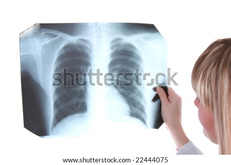 Young girl is looking to x-ray picture