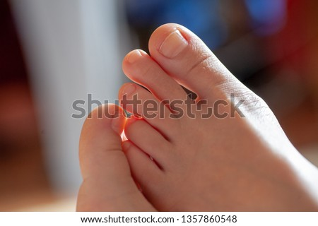young girl's toes are healthy and beautiful. Well-groomed toes. Concept for medical articles and ointments - the image of the toes and feet. Image of legs with space for inscriptions and advertising. Stock photo ©
