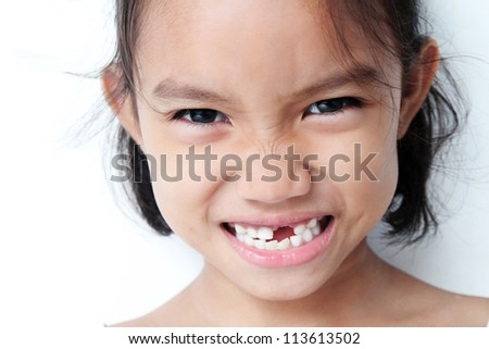 Young girl showing a missing teeth.