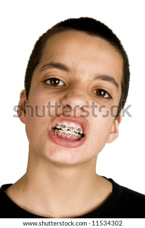 young handsome teenage is showing his dental braces