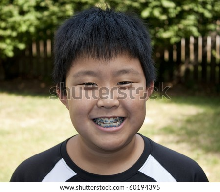 Young Korean boy smiling and showing his braces