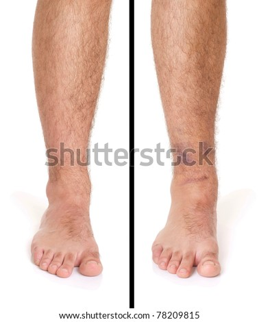 young male with sprained ankle isolated on white background (healthy vs unhealthy) - stock photo