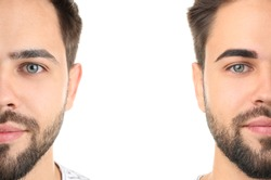 Young man before and after eyebrows correction on white background