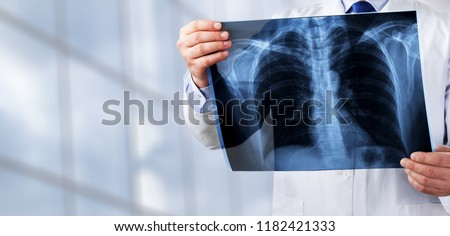 Young man doctor holding x-ray #1182421333