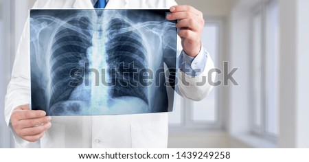 Young man doctor holding x-ray #1439249258
