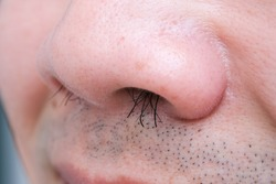 Young man's nose His nostrils are hairy. . Health and medical concepts