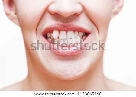 Young man showing crooked growing teeth. The man needs to go to the dentist to install braces. Stockfoto ©