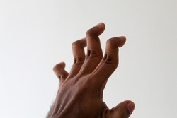 young man with a hyper extension fingers, hyper mobility fingers, swan neck deformity, It is commonly caused by injury or inflammatory conditions like rheumatoid arthritis or sometimes familial.