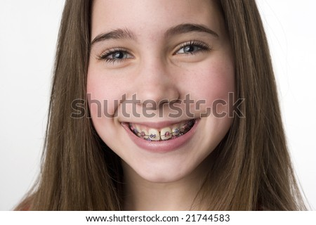stock photo : Young teen girl shows off her braces with a smile
