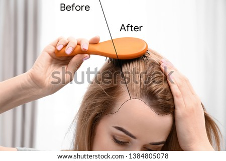 Young woman before and after hair loss treatment against blurred background, closeup