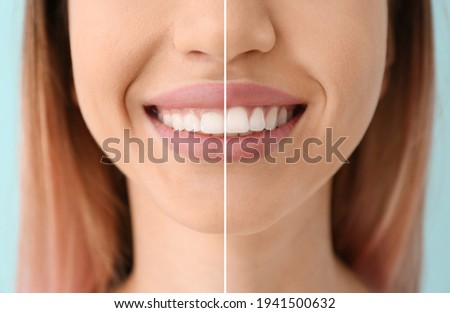 Young woman before and after procedure of gingival plasty, closeup Foto stock ©