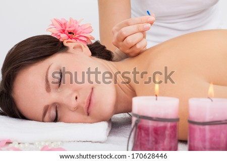 Young Woman Lying On Massage Table Getting Acupuncture Therapy From Masseuse