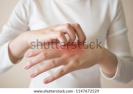 Young woman scratching the itch on her hands w/ redness rash. Cause of itchy skin include dermatitis (eczema), dry skin, burned, food/drugs allergies, insect bites. Health care concept. Close up.