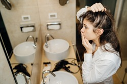 Young woman suffering from alopecia. Female hair loss.Worried female looking her hairline in the mirror.Stress caused problem, autoimmune disease.Balding from hair care products,allergic reaction