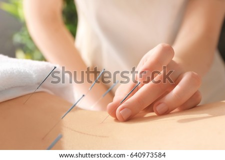 Young woman undergoing acupuncture treatment, closeup Foto stock ©