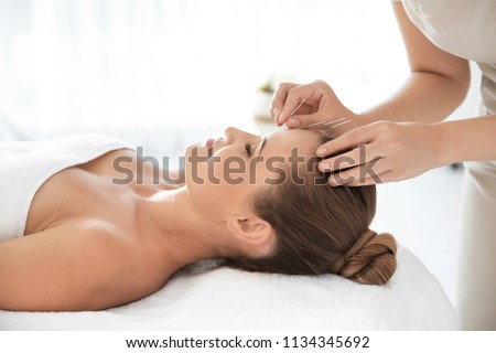 Young woman undergoing acupuncture treatment in salon