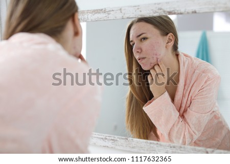 Young woman with acne problem near mirror in bathroom