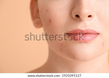 Young woman with acne problem on color background, closeup