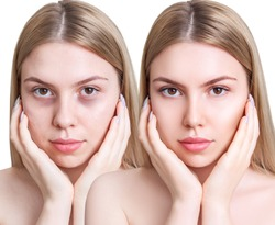Young woman with bruises under eyes before and after treatment. Over white background.