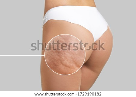 Young woman with cellulite problem on light background Сток-фото ©
