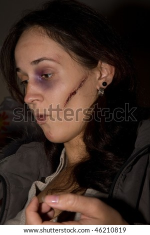 Young woman with fake cicatrice and bruise on her face