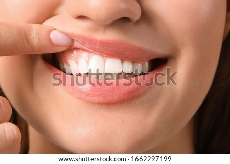 Young woman with healthy gums, closeup Stok fotoğraf ©
