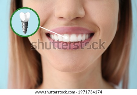 Young woman with implanted teeth, closeup Сток-фото ©