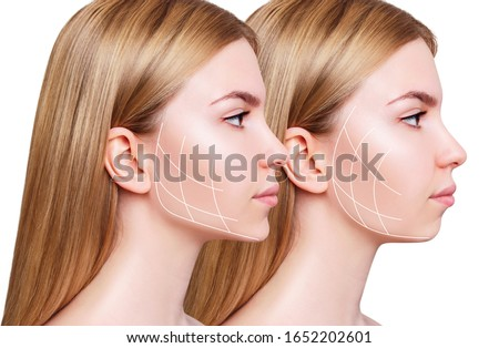 Young woman with lifting lines before and after chin correction. Over white background.