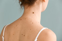 Young woman with moles on grey background